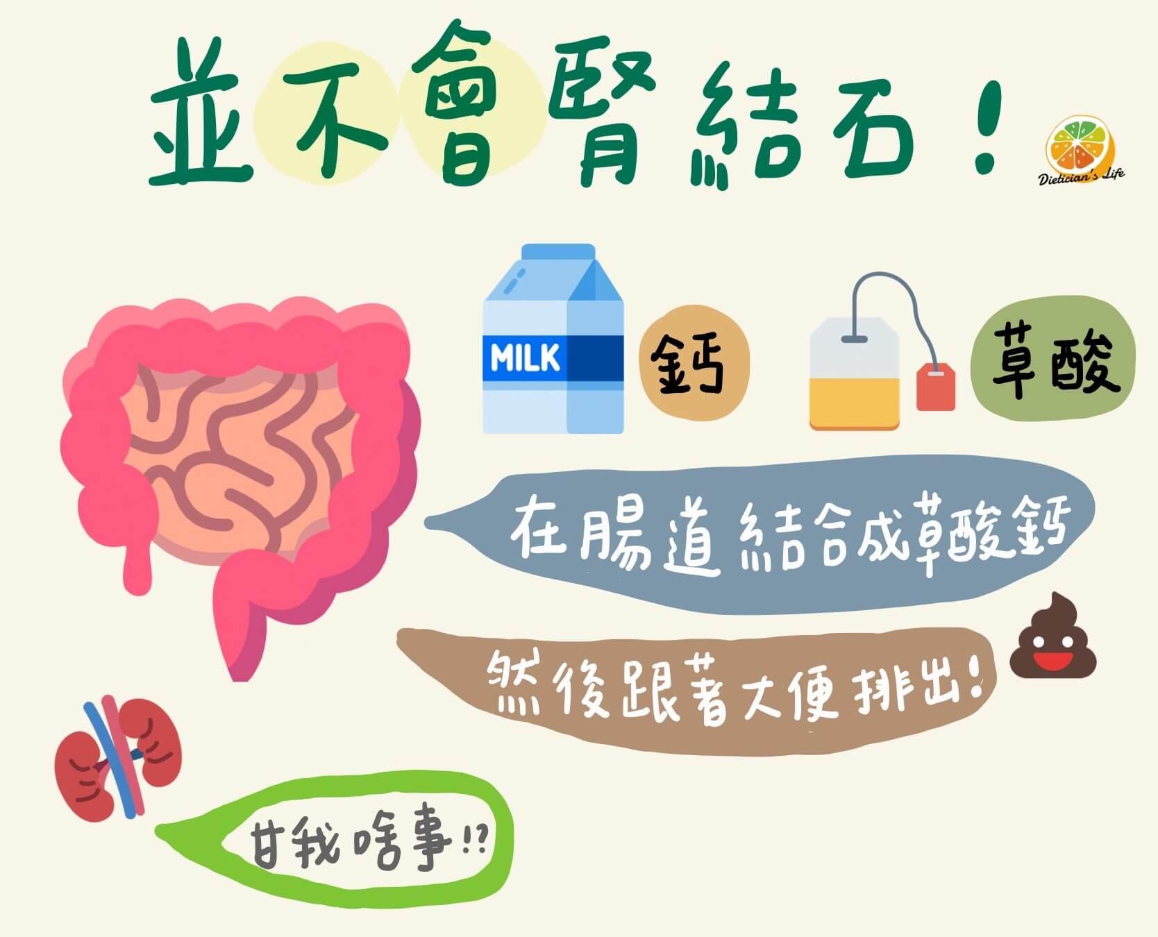 草酸鈣腎結石